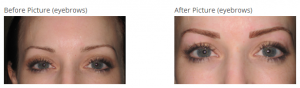 before-and-after-permanent-eyebrows