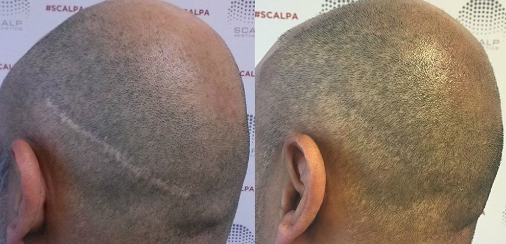 scalp micro pigmentation for hair transplant scars