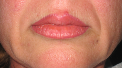 After Picture (lips)